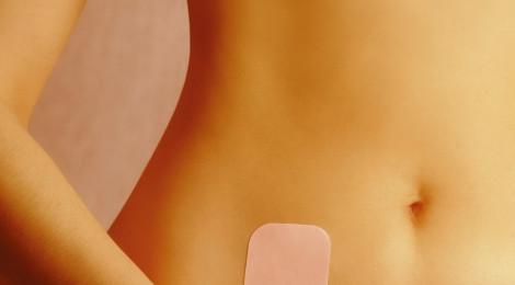 Le patch ou timbre contraceptif